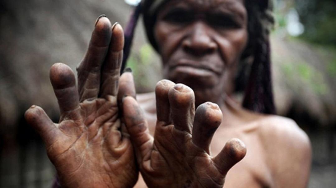 tradisi potong jari